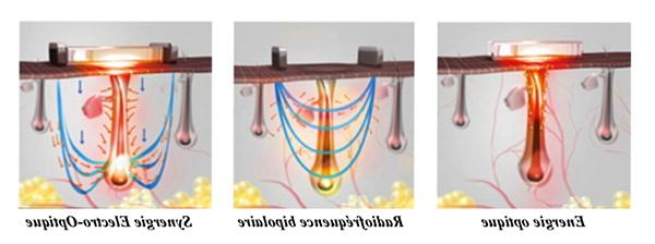 epilateur electrique le moins douloureux