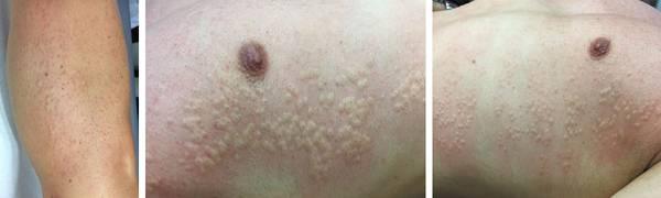 epilation electrique dermatologue